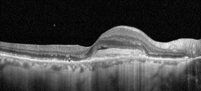 Paris rétina vision - examen OCT Spectralis