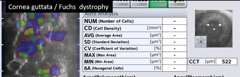 Paris rétina vision - microscopie spéculaire - dystrophy