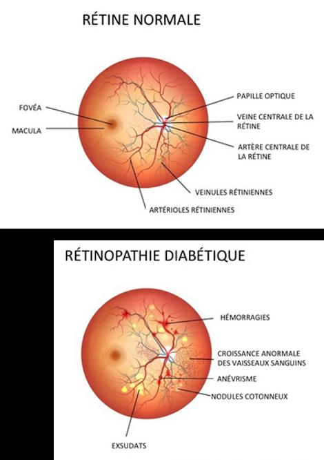 Paris rétina vision - rétinopathie diabétique